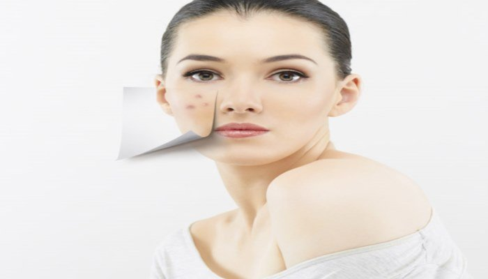 get-rid-of-blemishes