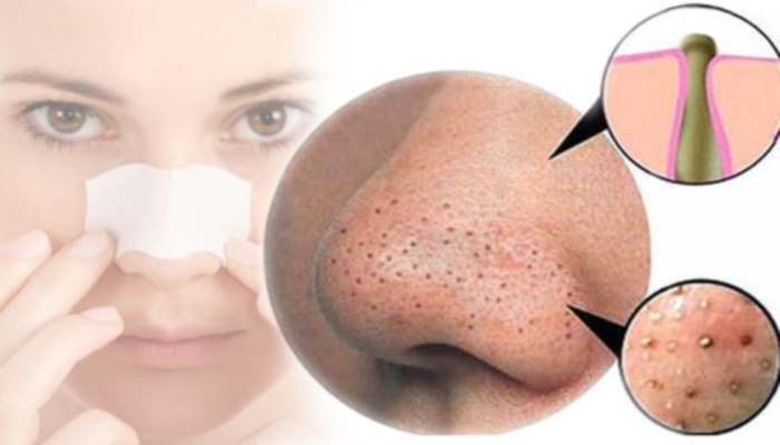 Rid of facial blackheads
